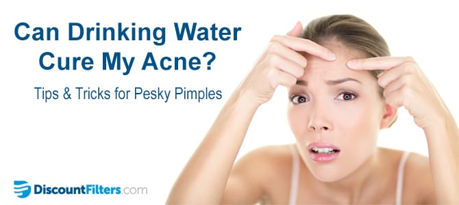 Can Drinking Water Cure My Acne